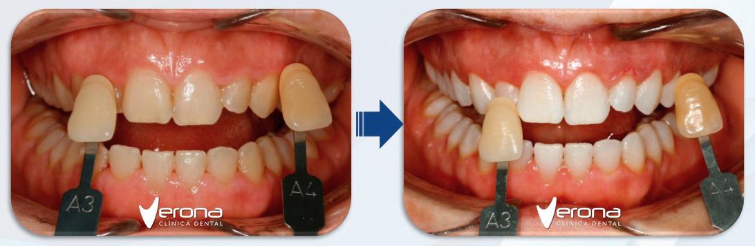Blanqueamiento dental Alcorcon